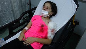 Pitbull,11 yaşındaki Tuğba'ya saldırdı