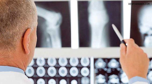 Boy Uzatma Ameliyatında İdeal Dönem 20 Yaş Sonrası